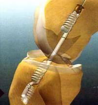 операция по замене крестовой связки коленного сустава